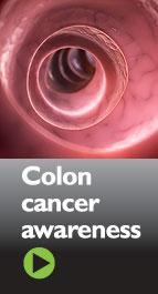 coloncancer143w
